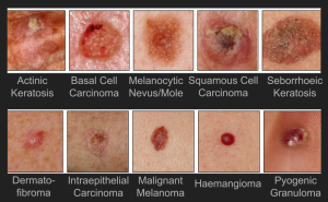 The 10 different types of skin lesions we want to classify